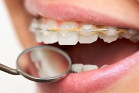 ortodoncjaa